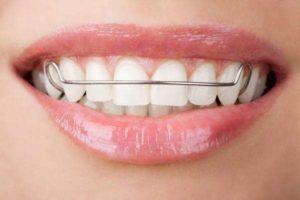 牙套保持器
